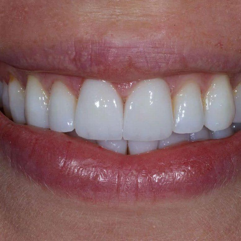 Зубные блокировки