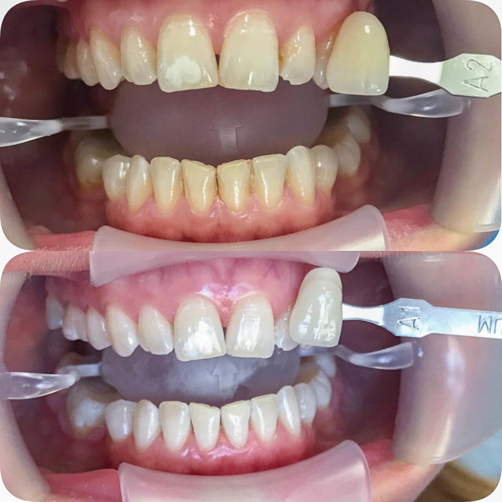 Γιατί τα δόντια μου είναι κίτρινα;