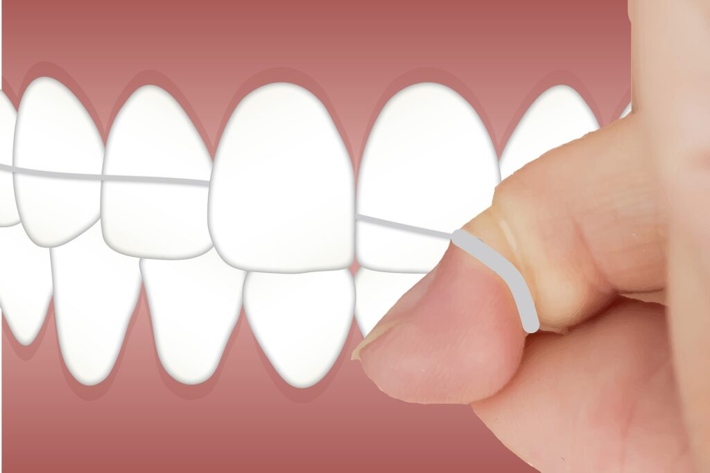 Καθαρισμός μεταξύ των δοντιών