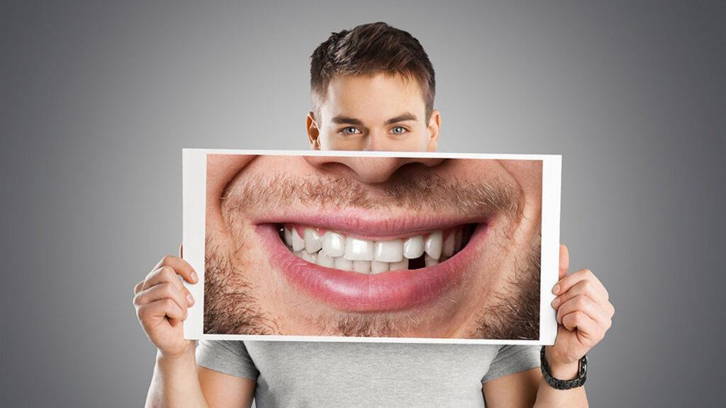 Σπασμένο δόντι – τι κάνουμε εάν συμβεί